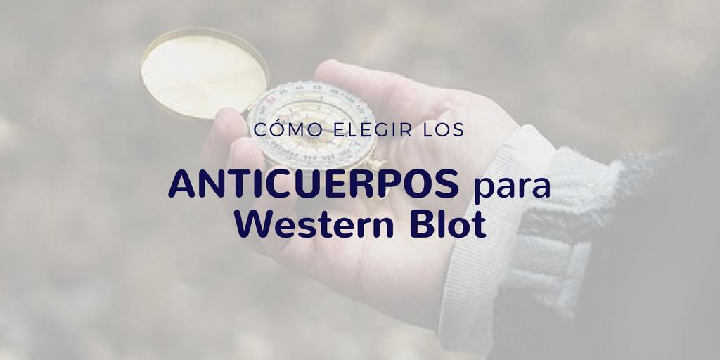 Cómo elegir los anticuerpos para Western Blot