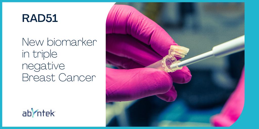 RAD51: New biomarker in Triple-negative Breast Cancer
